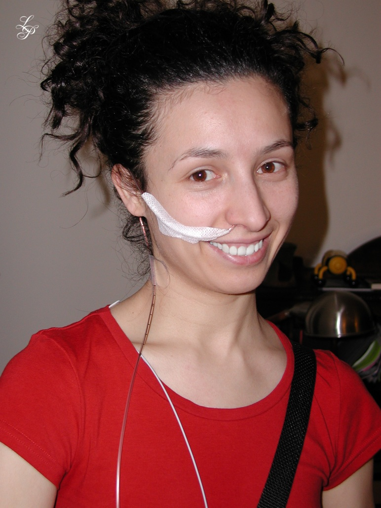 Ligia with acid reflux tester